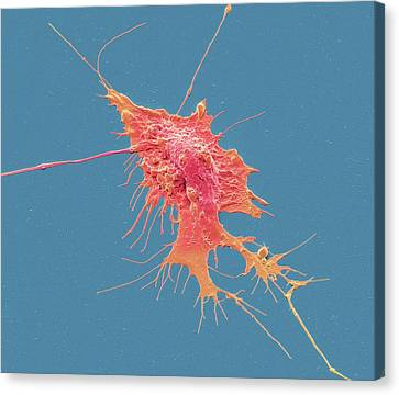Stem Cell-derived Neuron Canvas Print by Steve Gschmeissner