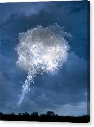 Temporal Lobe Epilepsy Canvas Print by Tim Vernon