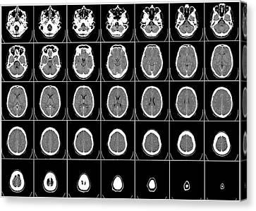 Transverse Cranial C T Scan Canvas Print by Daniel Hagerman