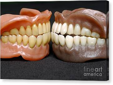 Two Sets Of Dentures Canvas Print by Medicimage
