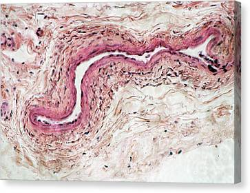 Vein Cross-section. Lm Canvas Print by Science Stock Photography