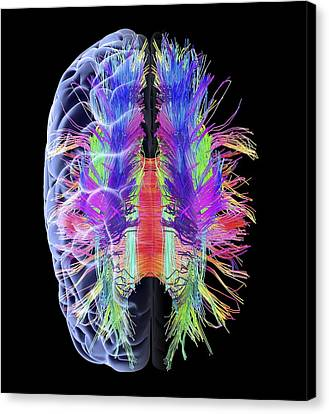 White Matter Fibres And Brain, Artwork Canvas Print by Science Photo Library