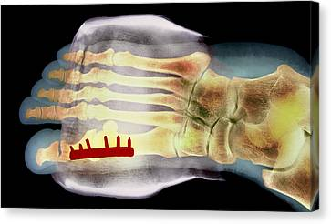 Big Toe After Bunion Surgery, X-ray Canvas Print by