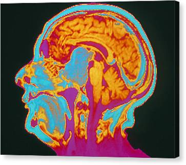 Coloured Mri Brain Scan Of A Pituitary Tumour Canvas Print by Mehau Kulyk