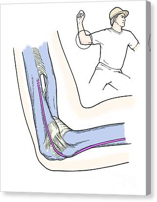 Illustration Of Elbow Ligaments Canvas Print by Science Source