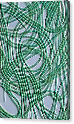 Oscillatoria Cyanobacteria, Dic Image Canvas Print by Sinclair Stammers