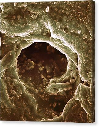 Sweat Pore, Sem Canvas Print by Biomedical Imaging Unit, Southampton General Hospital