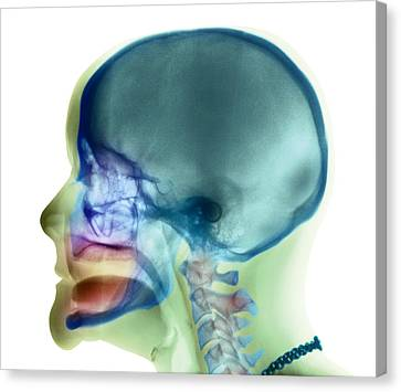 Complete Loss Of Teeth, X-ray Canvas Print by