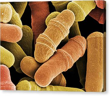 Dividing Yeast Cells, Sem Canvas Print by Steve Gschmeissner