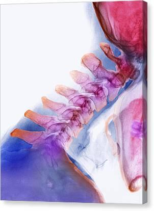 Neck Vertebrae Extended, X-ray Canvas Print by