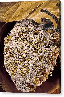 Nitrogen-fixing Bacteria, Sem Canvas Print by Steve Gschmeissner