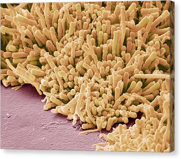 Plaque-forming Bacteria, Sem Canvas Print by Steve Gschmeissner