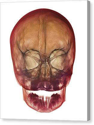 Child's Skull Canvas Print by D. Roberts