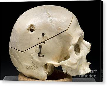 Gunshot Trauma To Skull, 1950s Canvas Print by Science Source