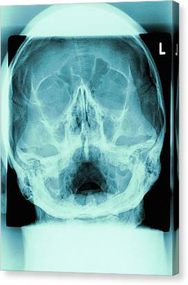 Healthy Skull, X-ray Canvas Print by Miriam Maslo
