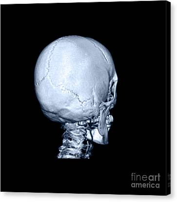Human Skull Canvas Print by Medical Body Scans