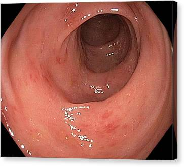 Inflamed Colon From Viral Gastroenteritis Canvas Print by Gastrolab