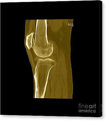 Knee Showing Osteoporosis Canvas Print by Medical Body Scans