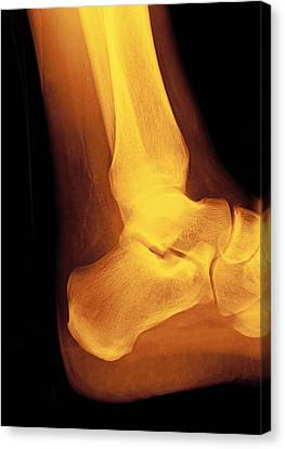 Normal Ankle Joint, X-ray Canvas Print by Miriam Maslo