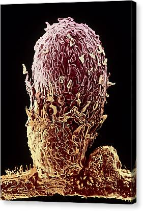 Root Nodule Of Pea Plant Canvas Print by Dr Jeremy Burgess