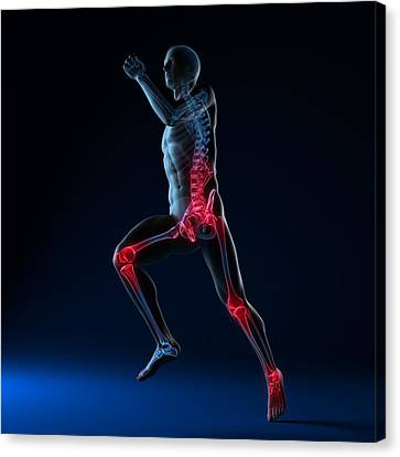 Running Injuries, Conceptual Artwork Canvas Print by Sciepro