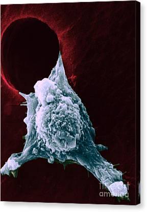 Sem Of Metastasis Canvas Print by Science Source