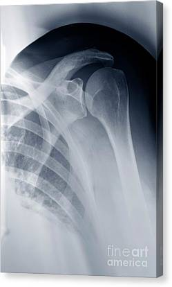Shoulder X-ray Canvas Print by Sami Sarkis