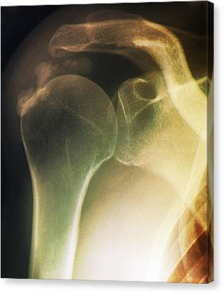 Tendinitis Of The Shoulder, X-ray Canvas Print by Zephyr
