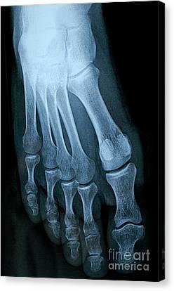 X-ray Image Of Mature Man's Feet Canvas Print by Sami Sarkis