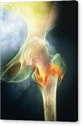 Coloured X-ray Of Femur Fracture In Osteoporosis Canvas Print by Medical Photo Nhs Lothian