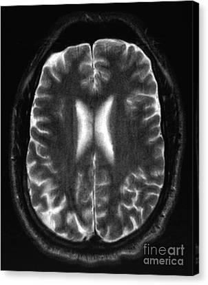 Human Brain Canvas Print by Ted Kinsman