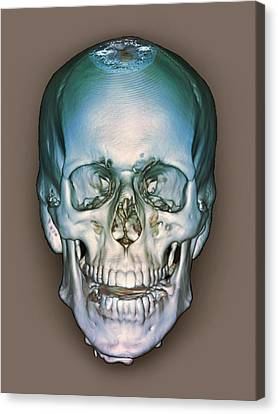 Normal Skull, 3d Ct Scan Canvas Print by Zephyr