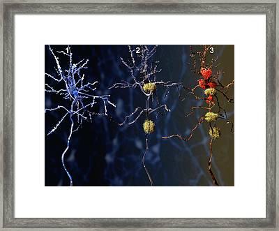 Alzheimer's Disease Framed Print by Juan Gaertner