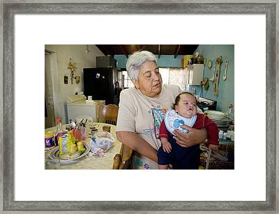 Baby With A Cleft Lip Framed Print by Jim West