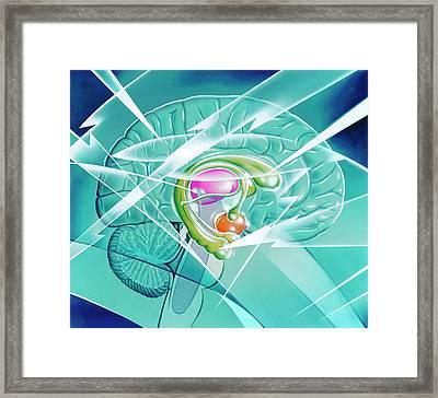 Brain In Epilepsy Framed Print by John Bavosi