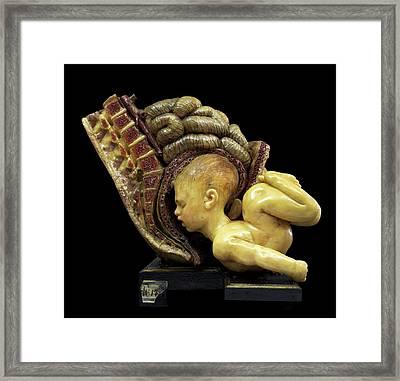 Breech Birth Model Framed Print by Javier Trueba/msf