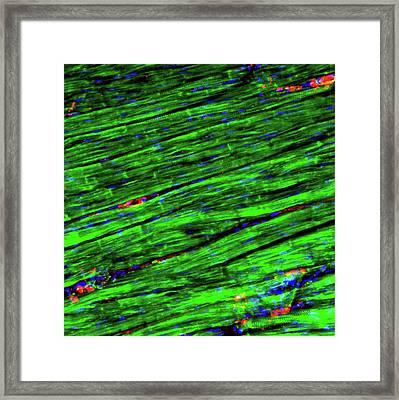 Cardiac Muscle Framed Print by R. Bick, B. Poindexter, Ut Medical School