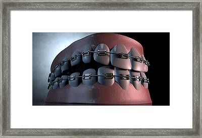 Creepy Teeth With Braces Framed Print by Allan Swart