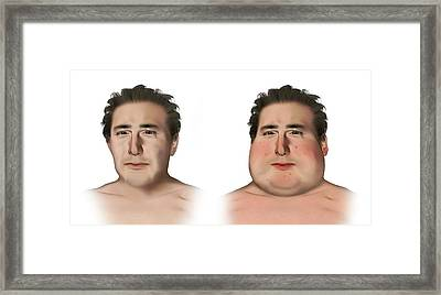 Cushing's Syndrome Framed Print by Mikkel Juul Jensen