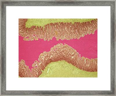 Cystic Fibrosis Framed Print by Steve Gschmeissner