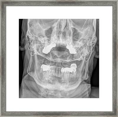 Dens Fracture. Cervical Spine X-ray Framed Print by Photostock-israel