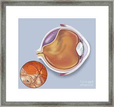 Diagram Of A Retinal Detachment Framed Print by TriFocal Communications