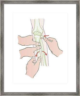 Fracture Reduction Framed Print by Jeanette Engqvist
