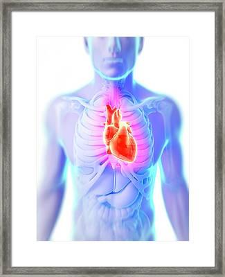 Heart Attack Framed Print by Sebastian Kaulitzki