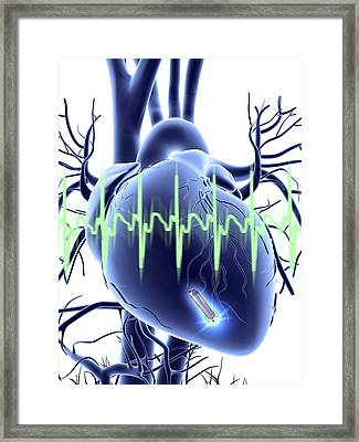 Heart With Leadless Cardiac Pacemaker Framed Print by Alfred Pasieka
