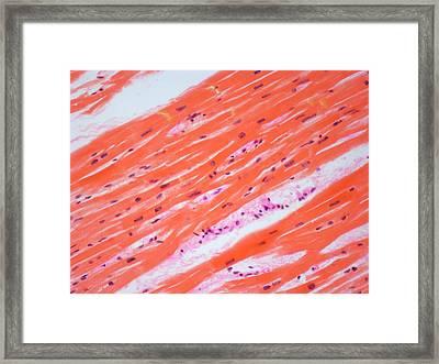 Human Cardiac Muscle Framed Print by Steve Gschmeissner