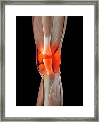 Human Knee Muscles Framed Print by Sciepro