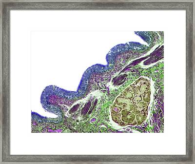 Human Lung Bronchus Framed Print by Steve Gschmeissner