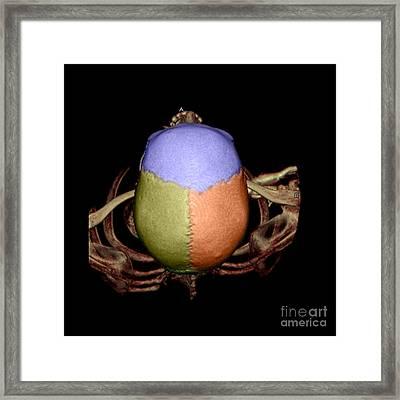 Human Skull Framed Print by Living Art Enterprises
