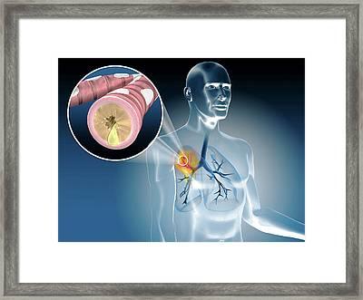 Illustration Of Bronchitis Framed Print by Harvinder Singh